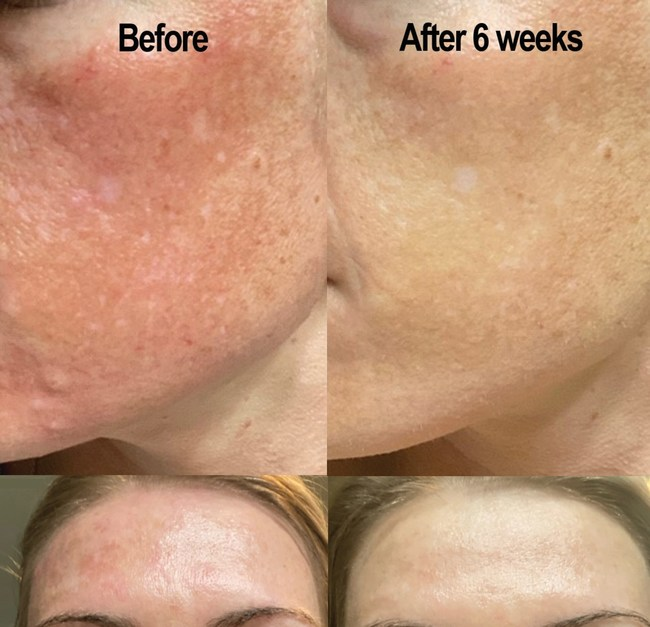 Patient under doctor's care, Amber, was prescribed TreCeuticals to improve her skin condition called Melasma. Melasma can be caused by sun exposure, genetic predisposition and hormone changes. These are before and after photos taken 6-weeks apart with Amber using TreCeuticals.