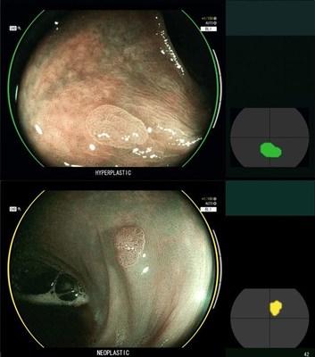CAD EYE - Fujifilm Artificial Intelligence meets Endoscopy