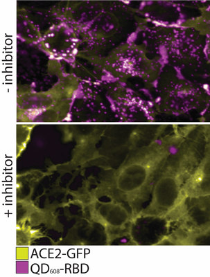 In this figure, the top panel shows ACE2-GFP (yellow) expressing cells binding and internalizing QD608-RBD (magenta). In the bottom panel, an inhibitor is added to prevent binding of QD608-RBD to ACE2-GFP, and the presence of ACE2-GFP on the cell surface is strong with little to no QD608-RBD visible. Scientists at NRL and NCATS, published their findings in ACS Nano on their collaboration to develop SARS-CoV-2 nanoparticle probes.