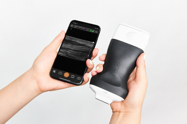 Clarius L20 HD handheld ultrasound scanner is designed to provide extremely high image quality for shallow anatomy.