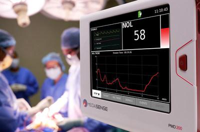 NOL monitoring by Medasense. Improves post operative pain. (PRNewsfoto/Medasense Biometrics Ltd.)