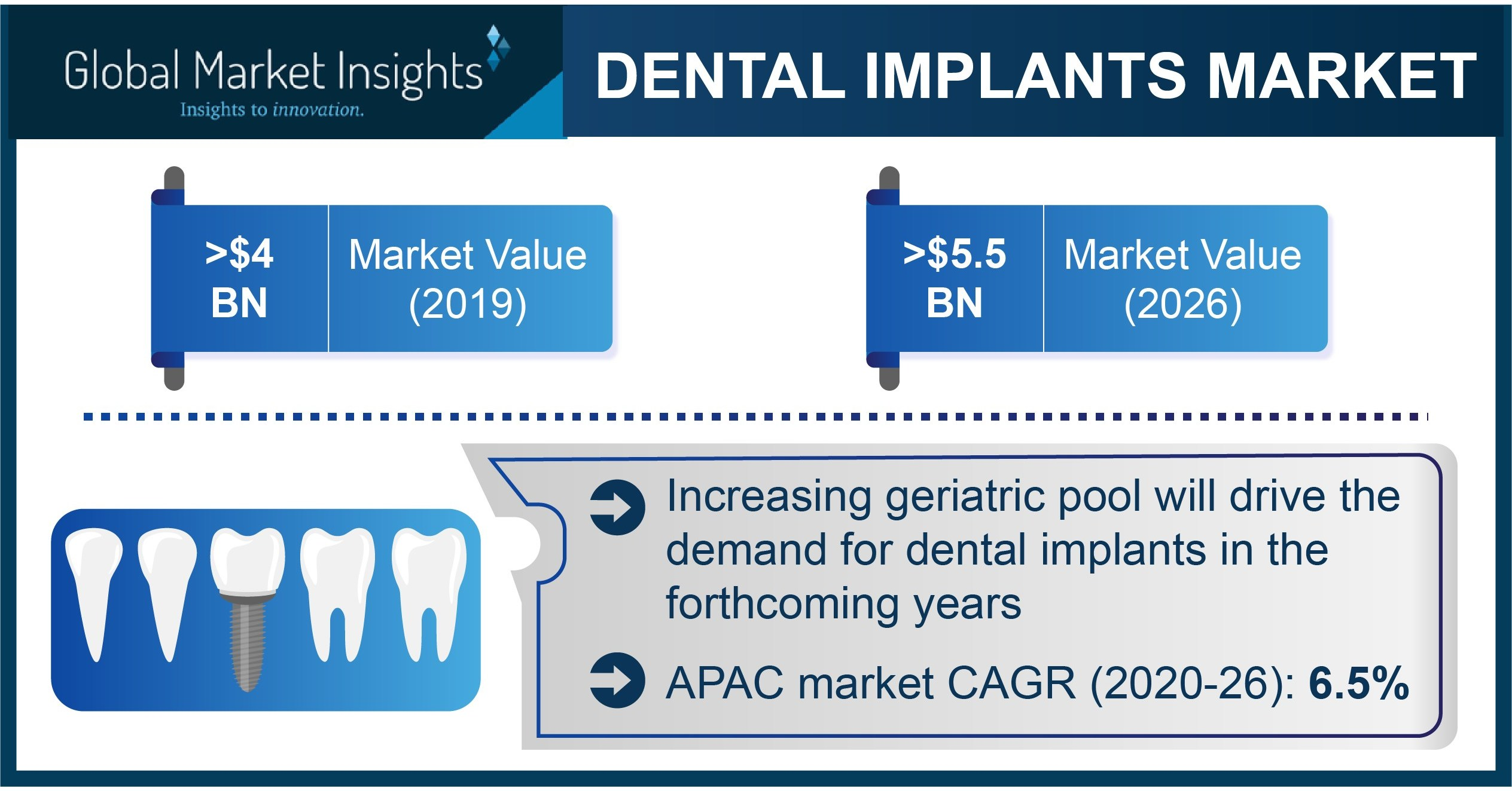 Dental Implants Market revenue to cross USD 5.5 Bn by 2026: Global Market Insights, Inc. thumbnail