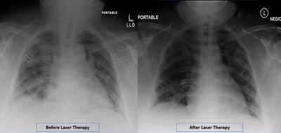 Radiographic Assessment of Lung Edema (RALE) by CXR showed reduced ground-glass opacities and consolidation following PBMT. Lung radiographic score is dependent on extent of involvement based on consolidation or ground-glass opacities for each lung. Total score is the sum of both lungs. RALE score before laser therapy=8. RALE score after laser therapy=3.