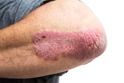 Psoriasis on a mid age mans elbow. Not isolated. (CNW Group/AbbVie Canada)