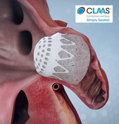 Conformal Medical's CLAAS Device