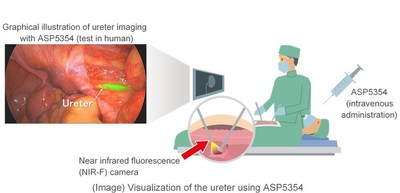 Uterer is visualized using ASP5354, shown in green during colorectal laparoscopic surgery.