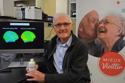 The professor and researcher Stephen Cunnane has been interested in the benefits of ketones as a source of energy for the brain. His efforts have paid off, as his research has led to a drink that can significantly improve cognitive function in people at a high risk of developing Alzheimer's disease; Photo: CIUSSS de l'Estrie ? CHUS. (CNW Group/Université de Sherbrooke)