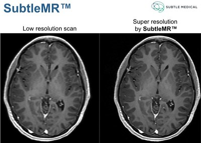 SubtleMR demonstrates super resolution on accelerated scan protocols.