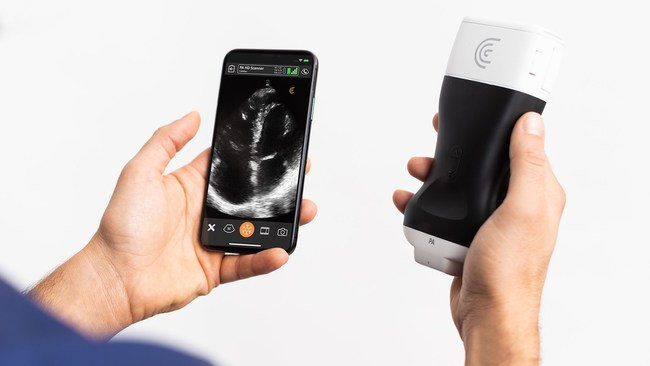 High-Definition Handheld Ultrasound Scanner Available Now for Rapid Bedside Cardiac Exams