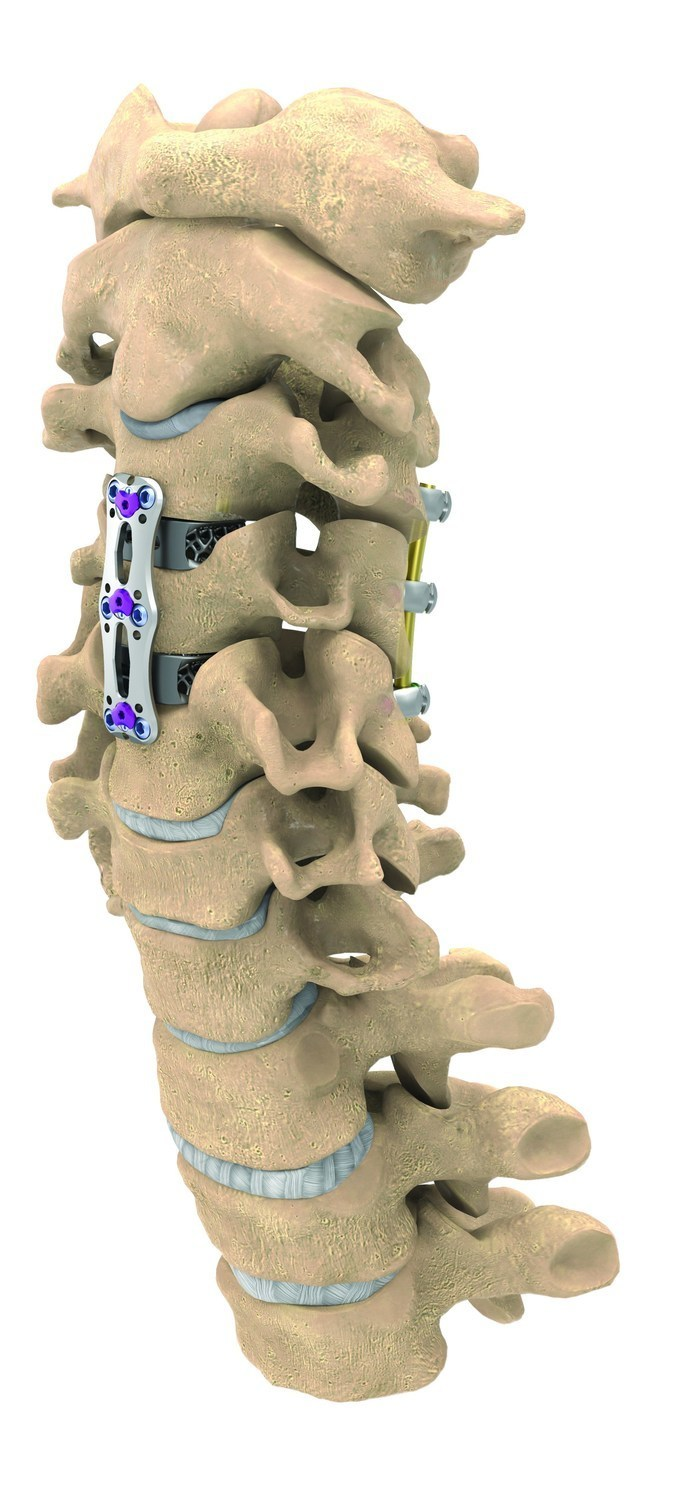 The NuVasive Anterior Cervical Plate