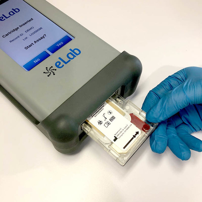 Evolve Manufacturing Technologies is producing a device that reads and delivers coronavirus diagnostics in just 10 minutes at the very same place where people submit their samples.