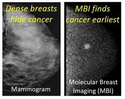 """Comparison of mammogram in dense breast tissue that appeared """"normal"""" and the MBI scan which detects a hidden early stage invasive cancer (courtesy of Mayo Clinic)."""