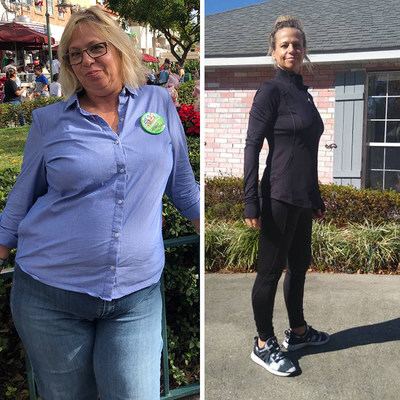55-year-old cosmetologist and store owner - Before & After Photo