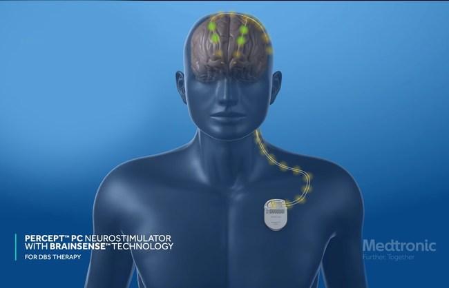Deep Brain Stimulation using PerceptPC Neurostimulator with BrainSense Technology. Image Courtesy Medtronic