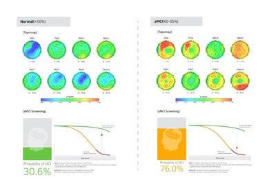 AI cloud based-EEG brain mapping results of normal vs. aMCI (preclinical AD) by iSyncBrain