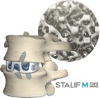 Centinel Spine's STALIF M FLX™ Listed as Top ALIF 3D-printed Cage...