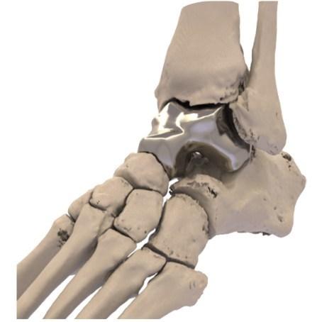 (PRNewsfoto/Additive Orthopaedics, LLC.)