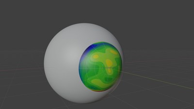 Optimeyes, embedded with Ansys Mechanical, reveals eye imprinter axial curvature
