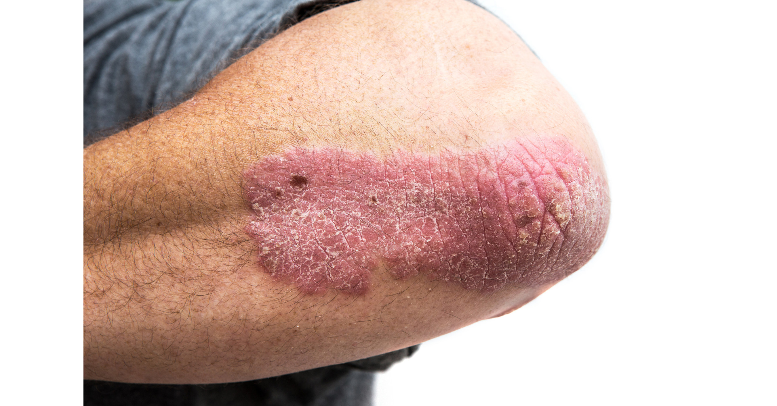 is psoriasis: a disability in canada)