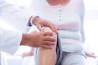 Zimmer Biomet - Osteoartrose acomete mais de 15 milhões de brasileiros e 20% dos casos diagnosticados são jovens adultos