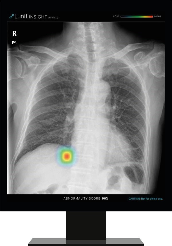 Lunit INSIGHT CXR detects findings and provides abnormality score on a chest X-ray image