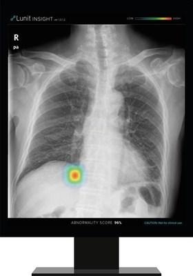 Lunit INSIGHT CXR detecta achados e fornece pontuação de anomalia em uma imagem de raio-X de tórax