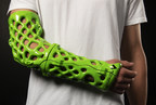 New 3D-Printed Orthopedic Casts