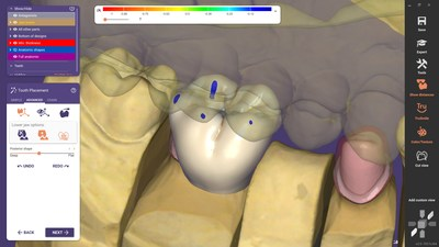 exocad's new software release DentalCAD 3.0 Galway, with 90 new and 80 optimized features, is now available. With this new release, the company introduces the new Instant Anatomic Morphing, offering automatic adaptation of teeth in real time, and thus improving speed and precision for the anatomic tooth placement.