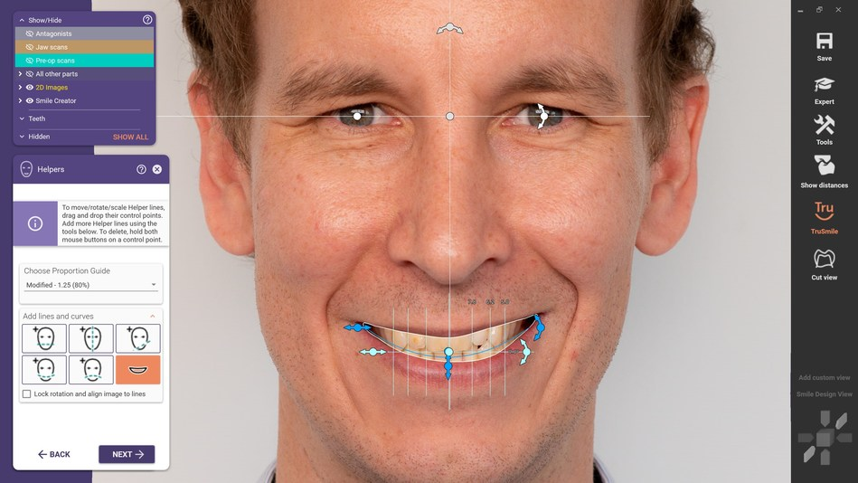 With the new DentalCAD 3.0 Galway release, exocad introduces AI technology for its Smile Creator. Facial features like the lip line or the eye position are automatically detected to assist the smile design. This helps the user reach aesthetic proposal faster and saves valuable time when designing cases.