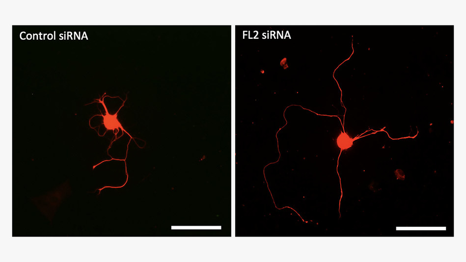 These images show neurons cultured in petri dishes and treated with either control (inactive) siRNA (left) or the siRNA drug itself (FL2 siRNA) (right). Neurons treated with the drug regenerate their axons (the thin fibers extending from the neurons' central bodies) at a significantly faster rate than control-treated neurons. Scale bar = 0.10 mm.