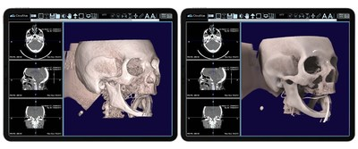 This data set was rendered on IMS CloudVue for Mobile 3D with Patented Cinematic Rendering. Both images are from the same data set and give the healthcare practitioner a 3D view and a 3D cinematic view of this patient's skull. These images are part of the team's pre-operative surgical planning, where physicians are looking for blood clots in the patient's brain vessels.
