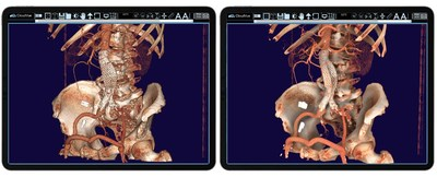 Using IMS' FDA Cleared CloudVue viewer for Mobile 3D with patented cinematic rendering, this physician can use both views to determine the procedure's efficacy. One can see the stent placement in both environments, mobile 3D and mobile 3D, with cinematic rendering. The surgical team is using these images to determine the outcome of this patient's procedure.