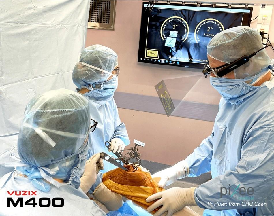 Vuzix M400 Smart Glasses used in Pixee Medical's Knee+ solution