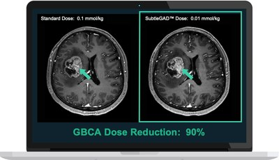 Equivalent image quality shown after 90% contrast dosage reduction with SubtleGAD