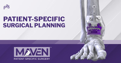 MAVEN™ Patient-Specific Surgical Planning