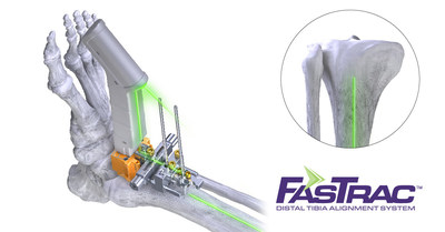 Paragon 28 FasTrac Distal Tibia Alignment System