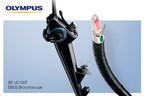 Olympus Announces New Endobronchial Ultrasound (EBUS) Bronchoscope...
