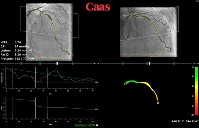 CAAS vFFR for real-time in cathlab non-invasive calculation of lesion significance