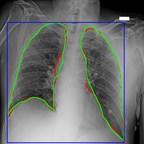 AI-for-COVID19: Predictive Diagnostics Platform Available to...