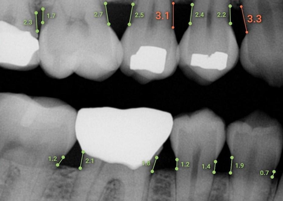 Overjet's Dental Artificial Intelligence measures bone levels in millimeters.