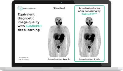 Equivalent diagnostic image quality with SubtlePET AI