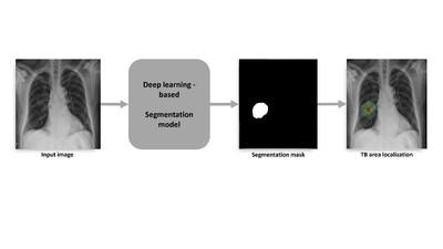 Tuberculosis Area Segmentation Approach