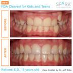 Spark™ Aligner erhalten die FDA-Zulassung für die...