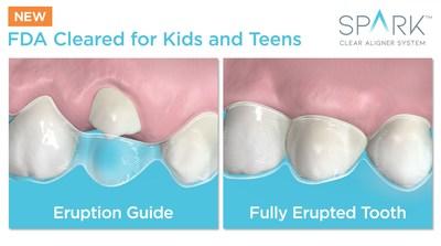 Spark for Kids & Teens I