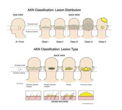 AKN classification system