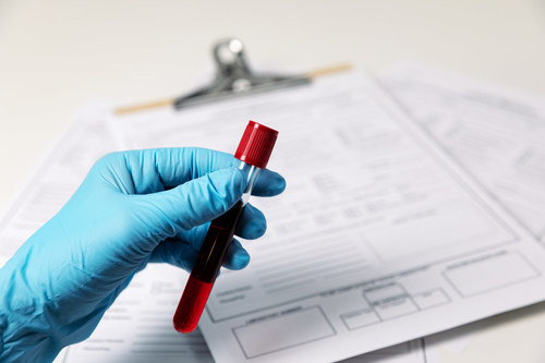 Trublood® is a blood based non-invasive liquid biopsy for diagnosis of prostate cancer
