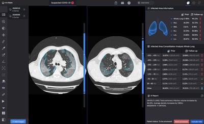 La solution logicielle InferRead CT PneumoniaMD compare la progression de l'infection et quantifie les changements au fil du temps (PRNewsfoto/InferVision AI)