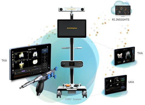 Smith+Nephew's Real Intelligence Digital Ecosystem