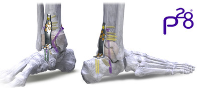 Silverback™ Span Plating System – Anterior and Posterior Span Plates