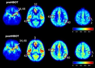 Study results show elevated blood flow and improved oxygenation in the brain of patients suffering from cognitive impairment.